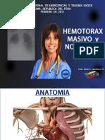 Hemotorax