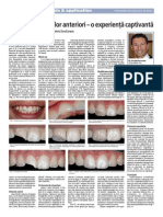 Restaurarea dintilor anteriori