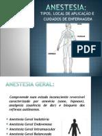 Tipos de Anestesias