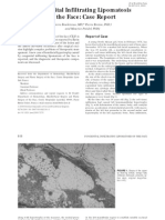 Congenital infiltrating lipomatosis of the face case report.pdf