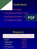 162059196-AV-block