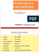 Presentasi Kasus - Contusio Oculi Dengan Hifema