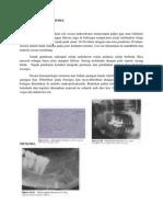 sementoblastoma 2-3