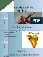 Fracturas de clavícula y hombro