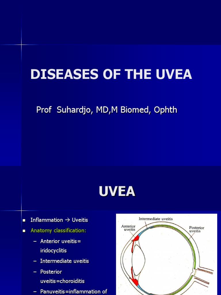 Kuliah Uvea & Lensa Internasional | Cataract | Vision