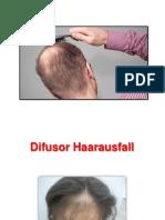 Pille Gegen Haarausfall - Haarausfall Durch Pille, Haarausfall Ursache