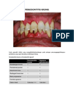 Periodontitis Kronis (Ummah)