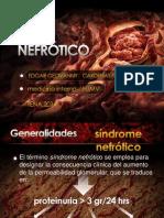Sindrome Nefrotico Presentacion