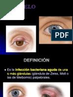 orzuelo-120701184126-phpapp01