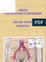 Fisiopatologia VARICES