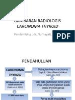 81235483 Gambaran Radiologis Carcinoma Thyroid