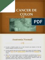 Cancer de Colon (1)