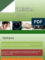 Epilepsia Power Point