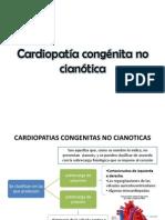 Cardiopatía congénita no cianótica
