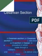 13084782 Cesarean Section