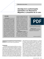 Cardiomiopatia Rmn Mx