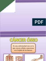 Cancer Oseo
