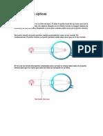 Enfermedades ópticas.docx
