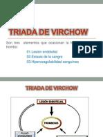 Triada de Virchow