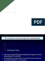 Tetralogia Fallot