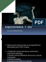 Esquezofrenia y eeg.pptx