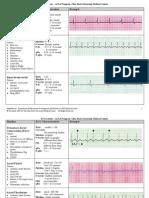 EKG Examples