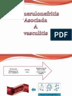 vasculitis nefro.pptx