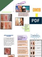 Triptico Cancer de Piel