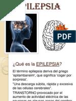 2 Epilepsia