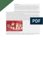Traumatismele Dento-paradontale