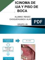 Carcinoma de Lengua y Piso de Boca