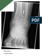 Radiografii picior