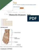 Eliminación del juanete paso 1 - MedlinePlus