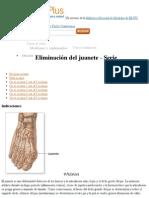 Eliminación del juanete paso 2- MedlinePlus