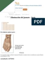 Eliminación del juanete paso 3- MedlinePlus