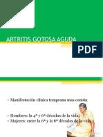 ARTRITIS GOTOSA AGUDA