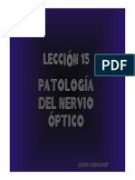 15_NEUROPATIA_OPTICA