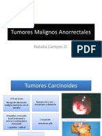 Tumores malignos anorrectales