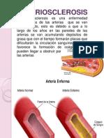 arteriosclerosis.pptx
