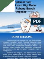 Odontektomi