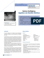 Varices Esofagicas