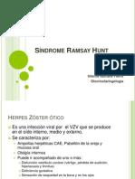 Síndrome Ramsay Hunt