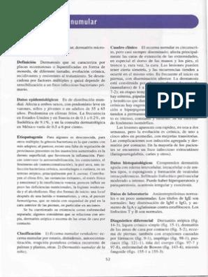 Eccema numular tratamiento pdf