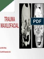 traumamaxilofacial1-130429050623-phpapp01