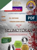 6 NEUMOTÓRAX