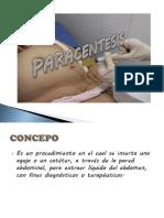 Paracentesis Abdominal