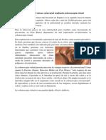 Prevención del cáncer colorrectal