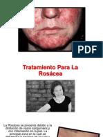 Tratamiento de Rosacea - Rosacea Cara, Como Se Cura La Rosacea
