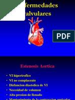 valvulopatias.ppt