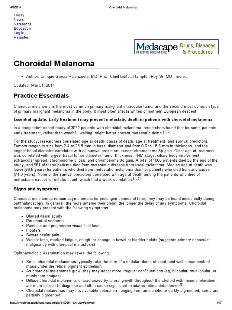 Choroidal Melanoma | Melanoma | Radiation Therapy